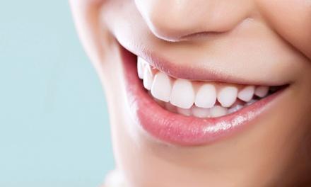 Oferta Empastes y limpieza bucal hasta -85%