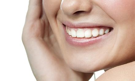 Oferta Limpieza bucal en 3 centros