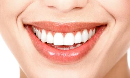 Oferta Blanqueamiento y limpieza bucal hasta -80%