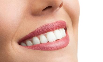 Oferta Limpieza bucal y blanqueamiento hasta -87%