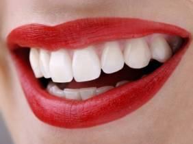 Oferta Limpieza bucal y blanqueamiento