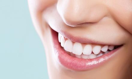 Oferta Blanqueamiento y limpieza dental
